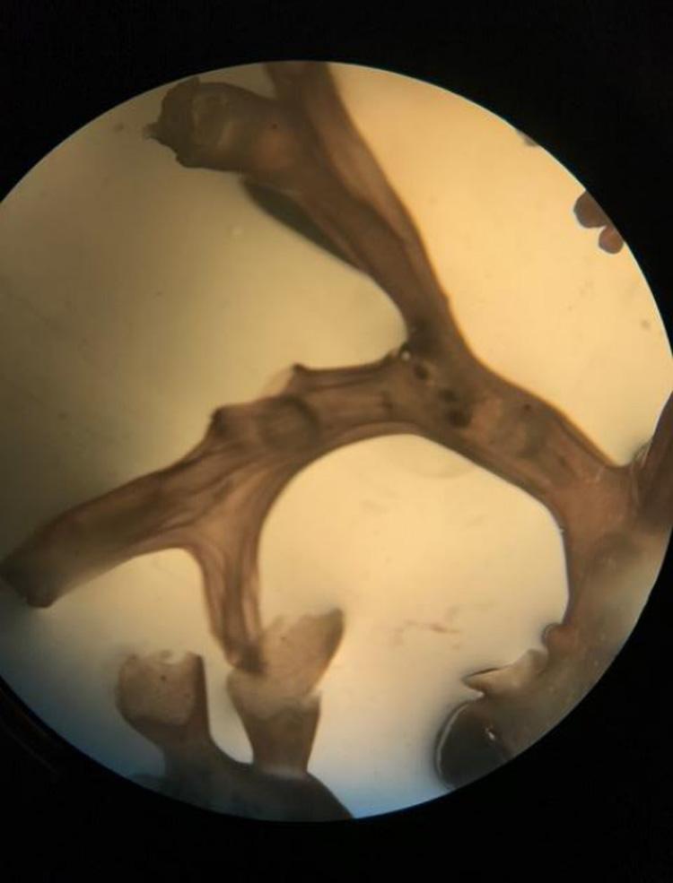 Microscope view of algae